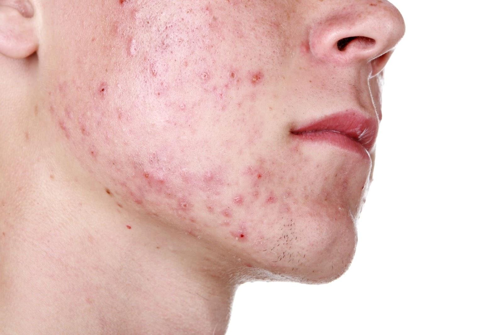 el acné