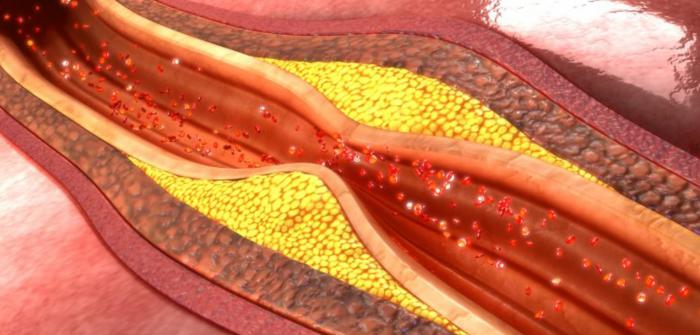Remedios caseros para mejorar tu colesterol