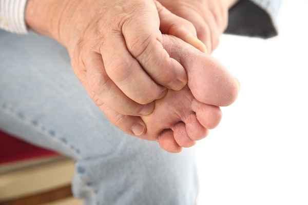 Razones por las que te pican los pies
