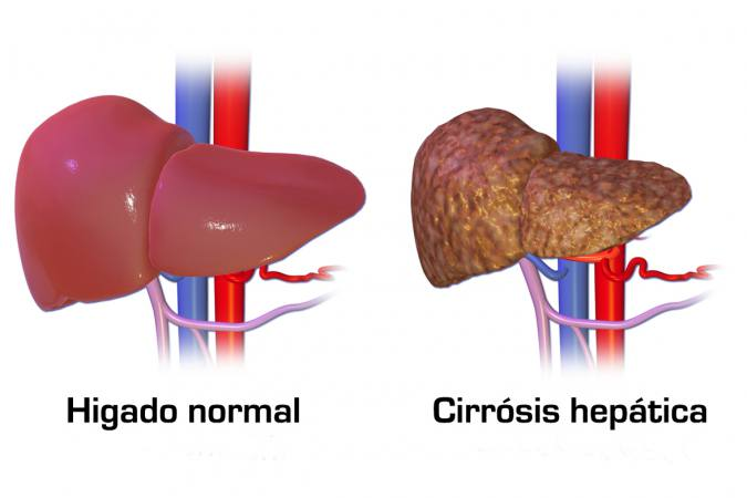 Aprende a prevenir la cirrosis