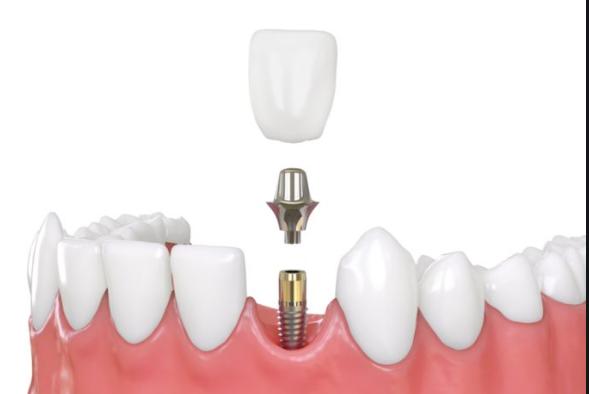 ¿Qué son los implantes dentales de carga inmediata?